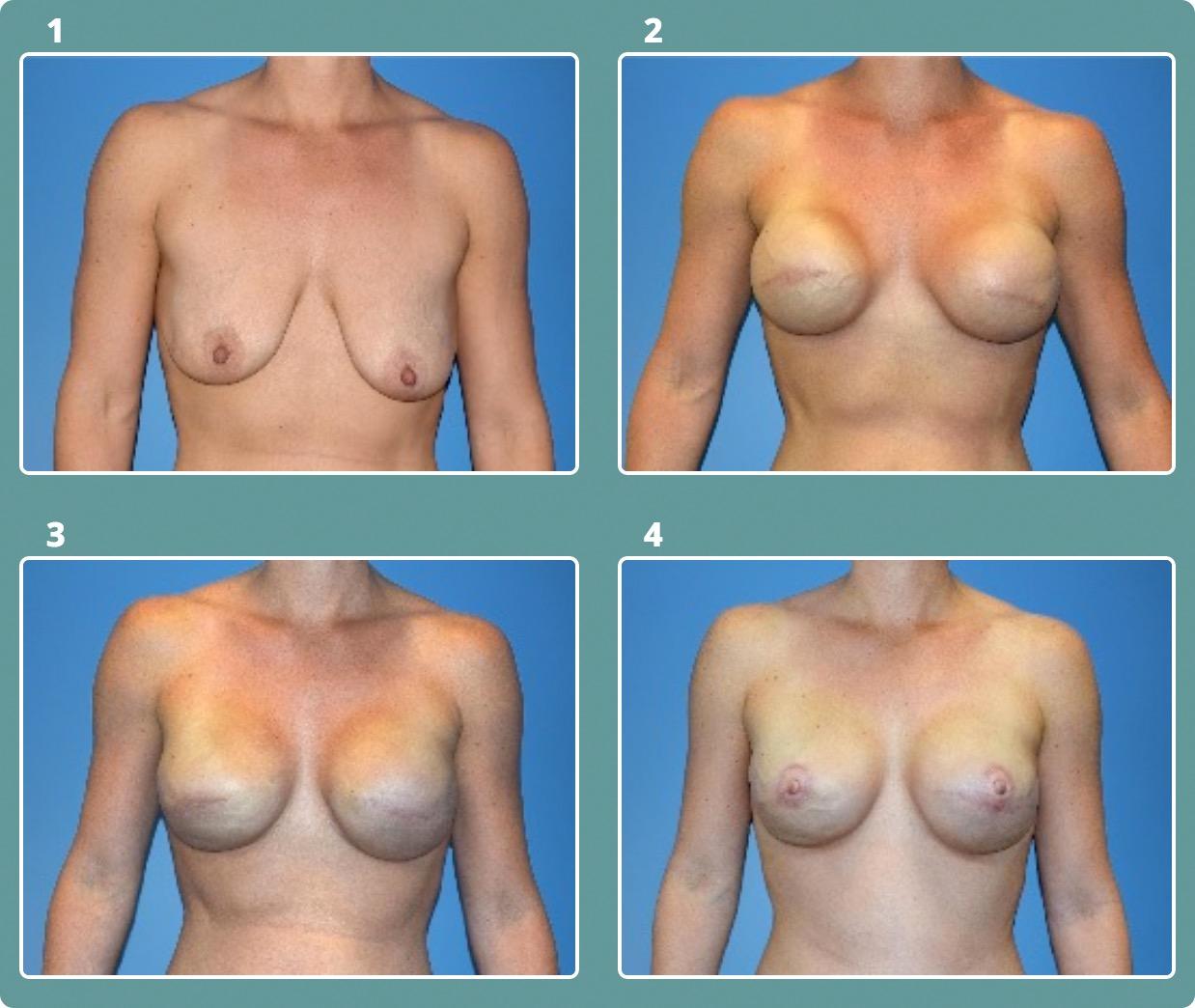 Patient 1, stages 1-4