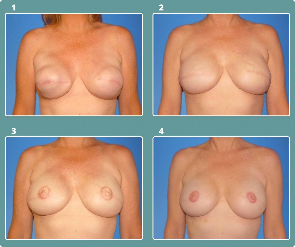 Patient 2, stages 1-4