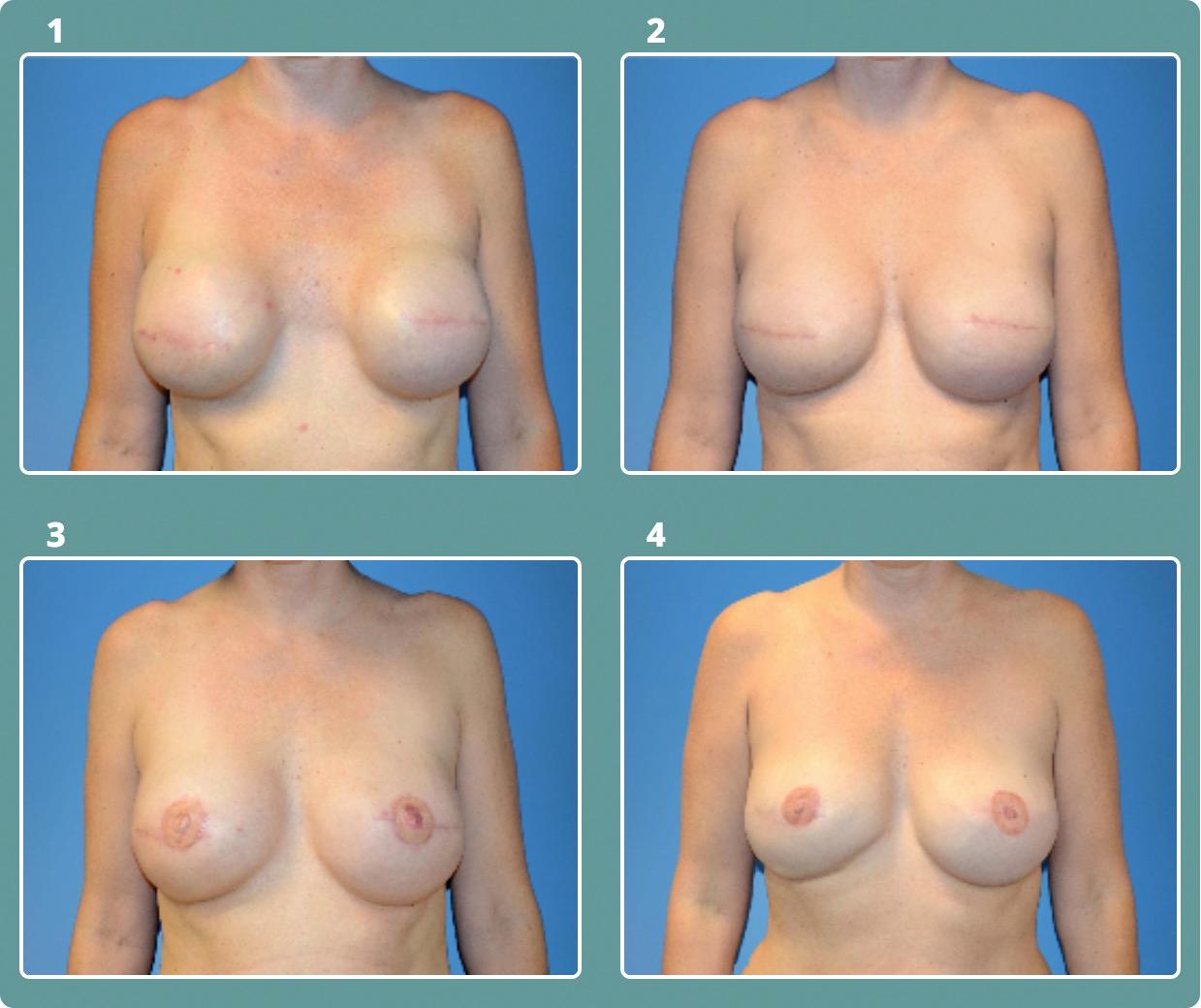 Patient 3, stages 1-4