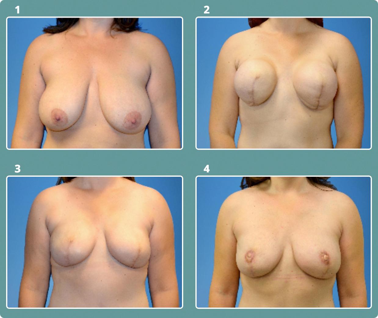 Patient 4, stages 1-4