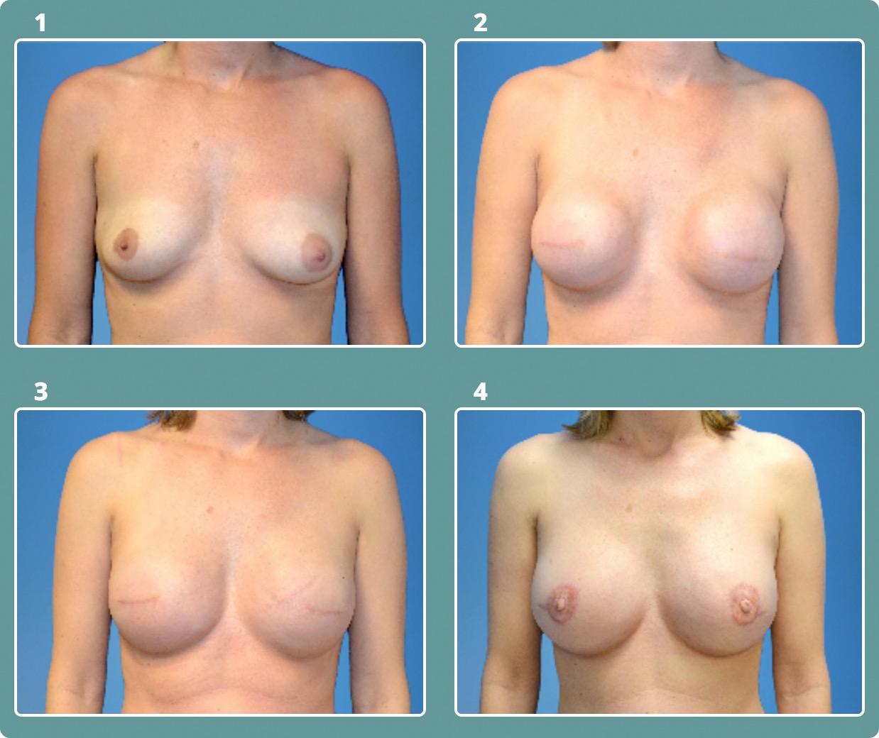 Patient 5, stages 1-4