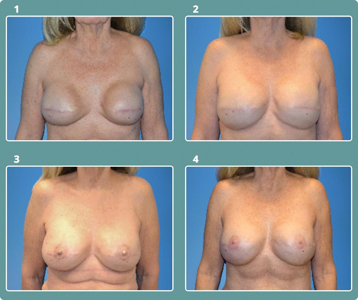 Patient 6, stages 1-4