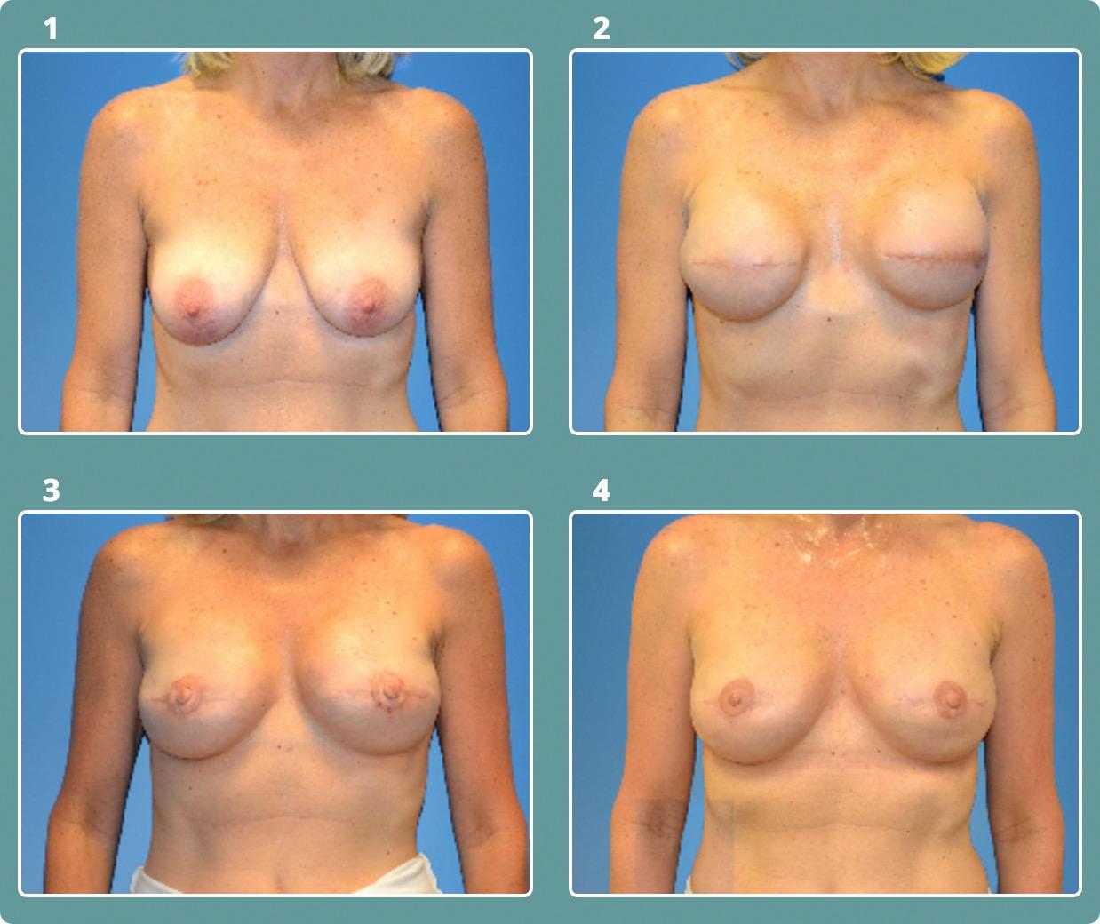 Patient 7, stages 1-4