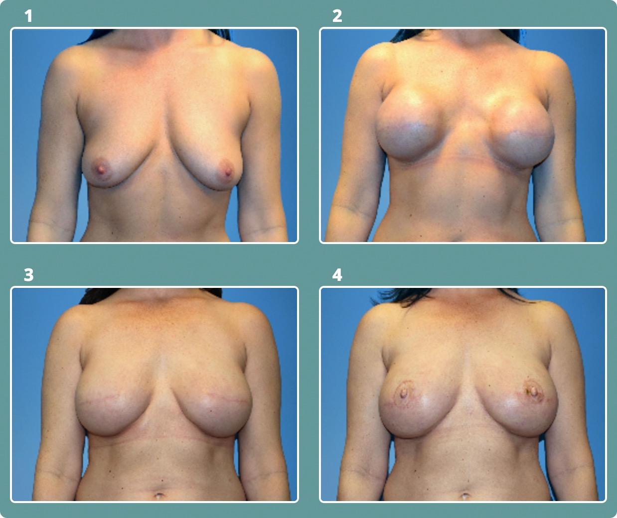 Patient 8, stages 1-4