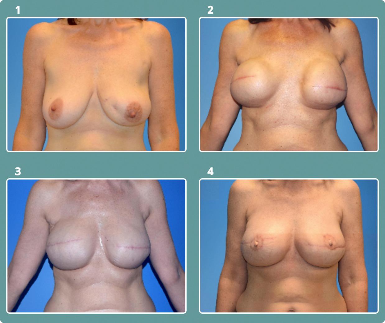 Patient 9, stages 1-4
